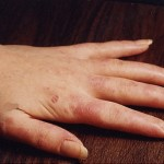 Hand and fingers inflammation from Lupus.